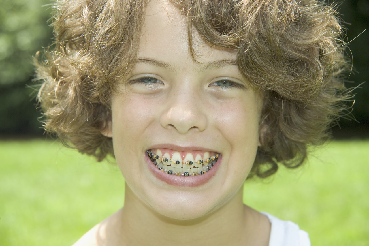 歯列矯正治療 成人 小児